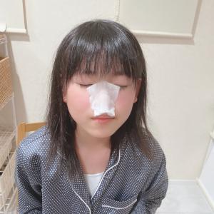 毛穴対策!毛穴の黒ずみ・汚れ・詰まりの解消方法(いちご鼻改善)