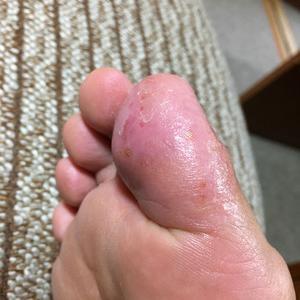 今現在の私の足裏は・・・