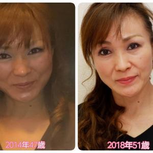 たるみ改善リフトアップ術&50代から艶肌へと変える