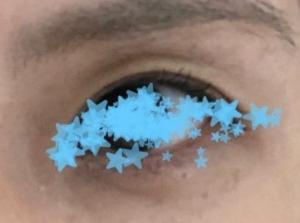 目の上のくぼみは眼瞼下垂なのか注入なのか?はたまた、、、