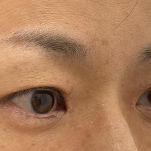眉下切開で5年前の自分の目元に(治療直後)