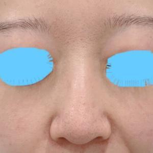 鼻のgメッシュ 治療直後の腫れ具合