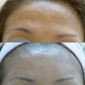 額のPRP治療 女性バージョン(3年後)
