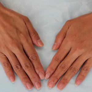 手の甲のPRP皮膚再生治療(8か月後)