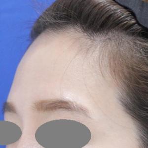 額の注入治療って何がいいのでしょうか?PRP4か月後