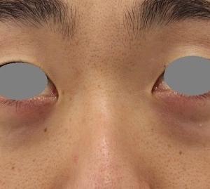 目の下のクマ治療(8か月後)