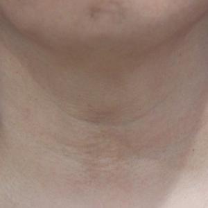 線維芽細胞移植の副作用