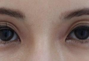 目の上のくぼみ、手術以外の方法