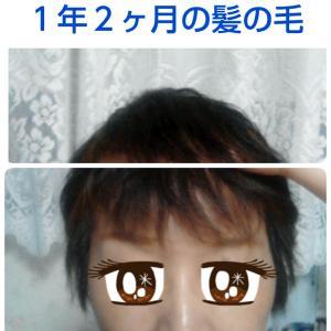 髪の毛事情(ラストケモから1年2ヶ月)