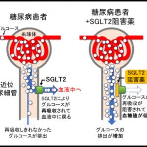 SGLT2阻害薬( 糖尿病のお薬 )が痛風に効くかも
