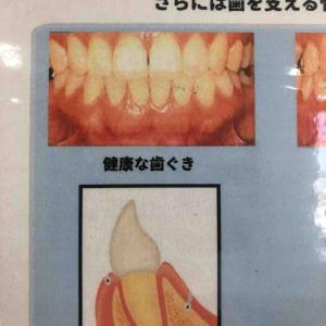 (店長)歯ぐき大事