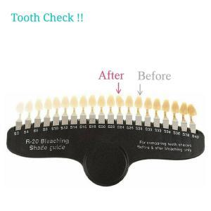 セルフホワイトニング Tooth Check!!