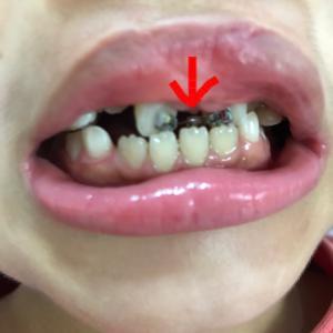 歯科受診16 矯正装置が壊れた