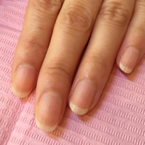 【レッスンレポ】爪の形と甘皮処理のbefore&after