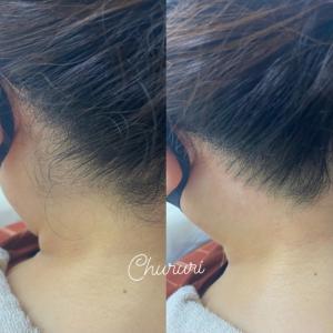 髪をアップにする季節【うなじ脱毛】☆Chururi 天満橋店