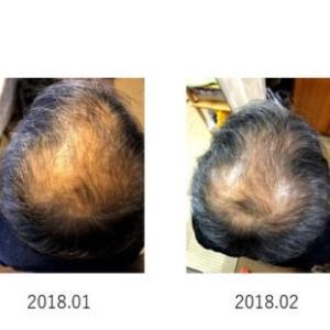 NcPAの試験画像を入手!70代男性の髪が・・・Σ(゚Д゚)!!