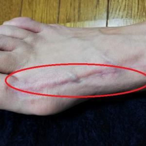 それでも治らない原因不明の足の痛み痺れはリウマチ?膠原病?腱が真っ赤に
