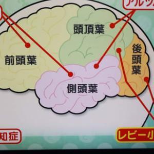 ~~★彡 ≪ 認知症に4つのタイプ・・≫ ★彡~~