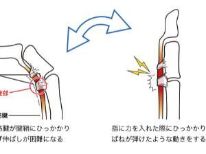 指の腱鞘炎 ばね指