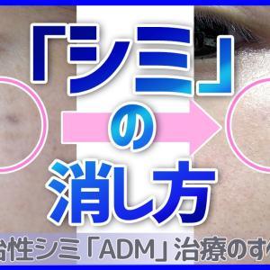 シミの消し方 -通常シミ~難治性シミ『後天性真皮メラノサイトーシス(ADM)』治療まで-