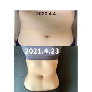 【7月までに−10kg】体質改善ダイエット18週間目の結果【SlimUp10】