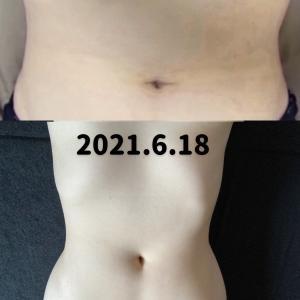 【7月までに−10kg】体質改善ダイエット26週間目の結果【SlimUp10】