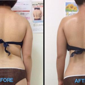 【12・1月限定】痩身メニューが30%オフ❤︎最大4回利用可能!