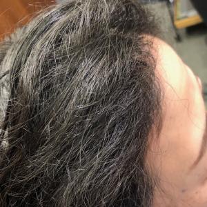 加齢毛専用「おっちゃんとこのエイジング矯正!」