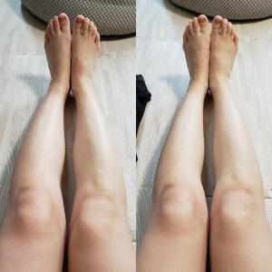 足のむくみ対策☆医療用弾性ストッキング EASE オペイクハイソックス/やや厚手
