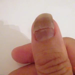 爪が折れる 抗がん剤の副作用