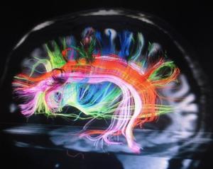 脳神経回路のネットワーク