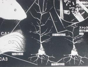 細胞・ニューロン・刈り込み・樹状突起の分枝