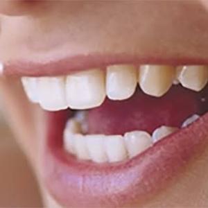 歯周病の怖さ‼️ 心筋梗塞、糖尿病との関連性⁉️