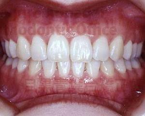 歯と健康寿命との密接な関係‼️