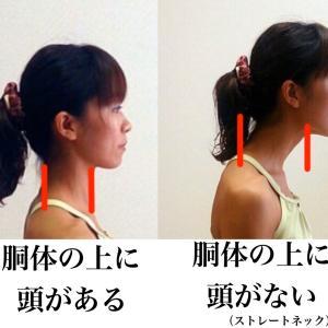 <2>ストレートネックと、白髪・頭皮の臭い・頭のコリの関係性