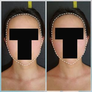 【レビュー】頬骨管理受けてから写真撮るのが好きになりました!