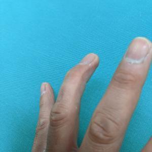 マレットフィンガー・槌指・突き指