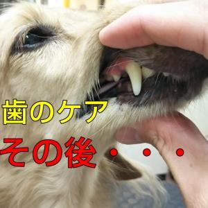 病院で歯石取りした後のケア大丈夫?