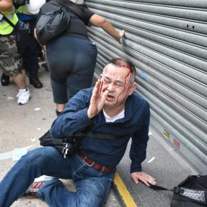 【画像】香港デモ、中国人に間違われ日本人観光客ボコられる  地元紙報道