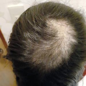 【武漢肺炎】朝日新聞「ストレスで自ら髪を抜いた小6女児、気づけなかった母…休校3カ月は長かった」→全部中国共産党の隠蔽が悪いんだよ