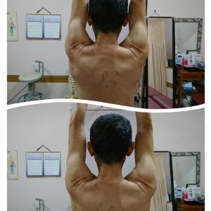 筋膜と筋肉の調整 運動のパフォーマンスUPのすすめ