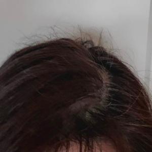 やっぱり髪、生えてきてますよね!