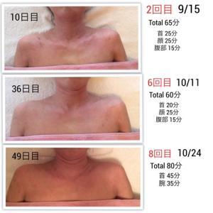 アトピー性皮膚炎へのMLD