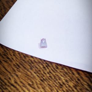 1本目の大人の歯