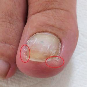 抗がん剤治療後の足の爪障害(剥がれ、巻き爪)に力を入れていきます