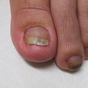 抗がん剤による足の爪障害ケア