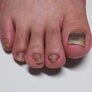 抗がん剤による足の爪障害・・・爪が剥がれそうで剥がれない