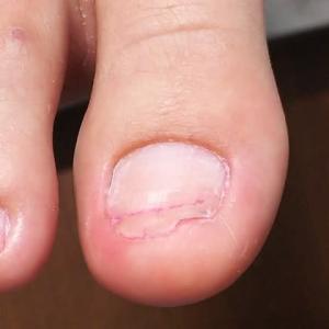 抗がん剤で足の爪が剥がれたが・・・その後伸びて来ない