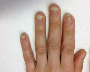 抗がん剤治療が爪におよぼす影響