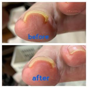 抗がん剤後に足が巻き爪になる